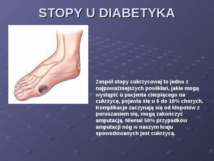 Cukrzyca - Slajd 11