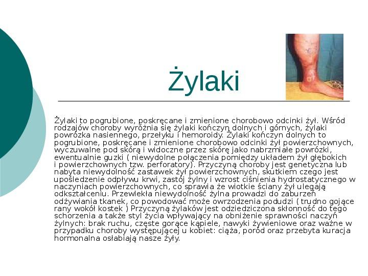 Choroby układu krążenia - Slajd 10
