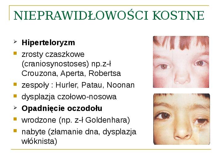 Objawy kliniczne w chorobach oczodołu - Slajd 20
