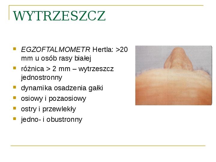 Objawy kliniczne w chorobach oczodołu - Slajd 22