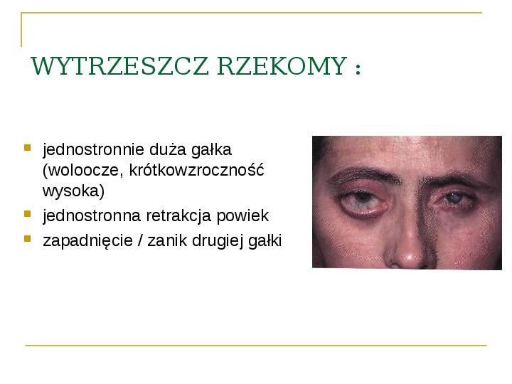 Objawy kliniczne w chorobach oczodołu - Slajd 24