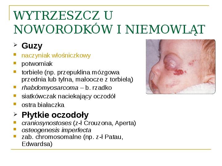 Objawy kliniczne w chorobach oczodołu - Slajd 25