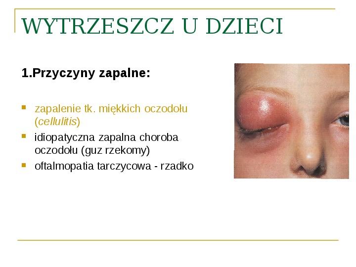 Objawy kliniczne w chorobach oczodołu - Slajd 26