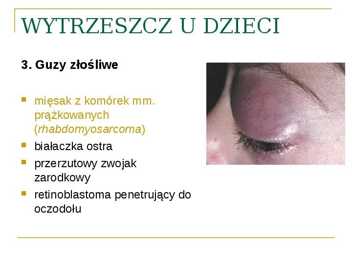 Objawy kliniczne w chorobach oczodołu - Slajd 28