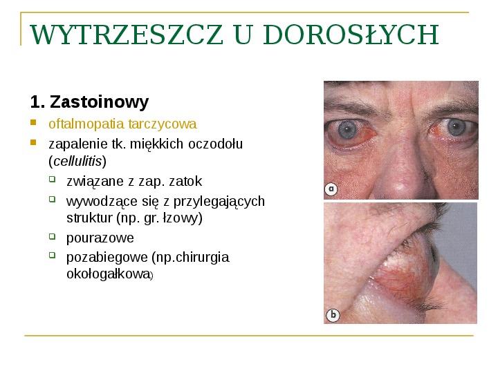 Objawy kliniczne w chorobach oczodołu - Slajd 29