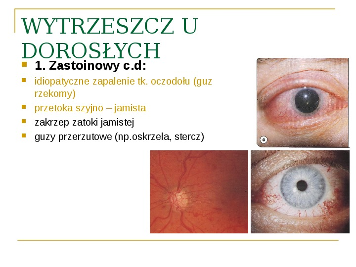 Objawy kliniczne w chorobach oczodołu - Slajd 30