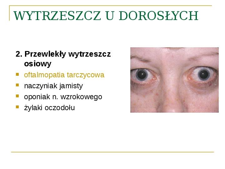 Objawy kliniczne w chorobach oczodołu - Slajd 31