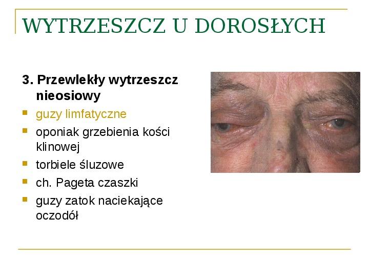 Objawy kliniczne w chorobach oczodołu - Slajd 32