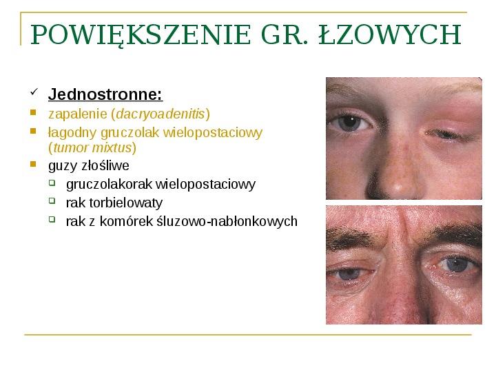Objawy kliniczne w chorobach oczodołu - Slajd 33