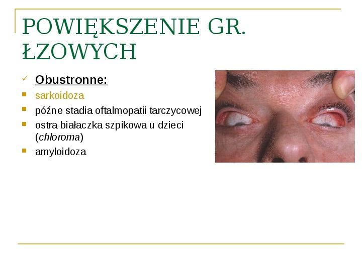 Objawy kliniczne w chorobach oczodołu - Slajd 34
