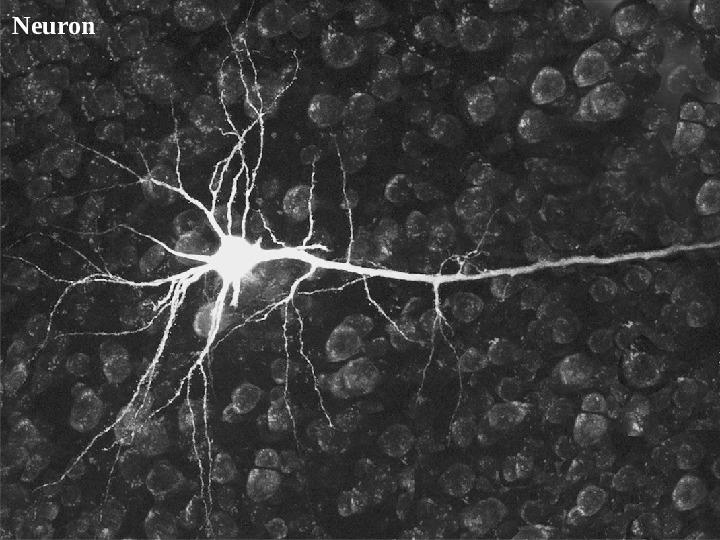 Mózg - Slajd 43