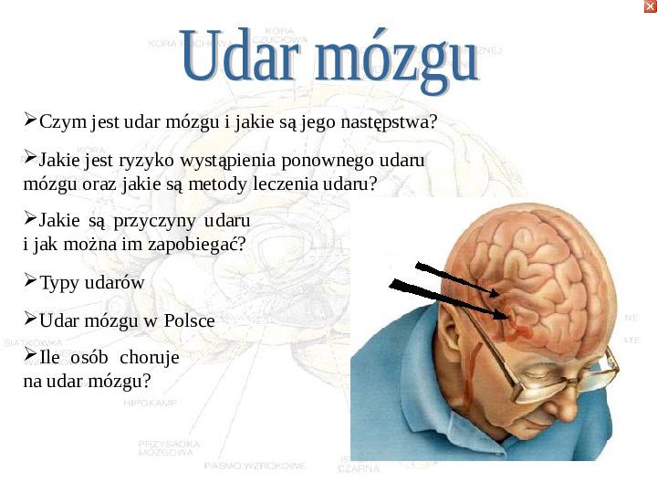 Mózg - Slajd 53