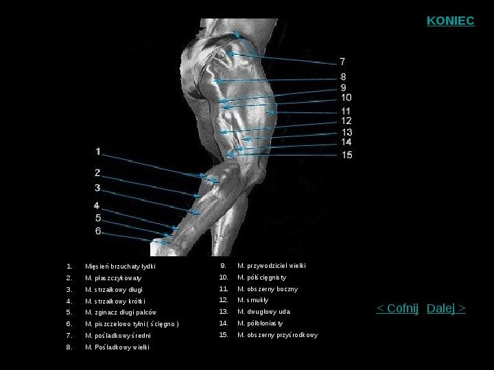Mięśnie szkieletowe człowieka - Slajd 6