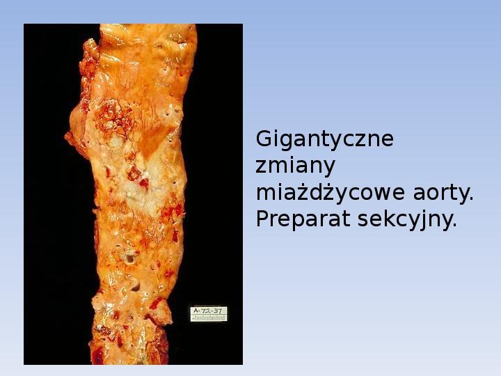 Choroby cywilizacyjne - Slajd 4
